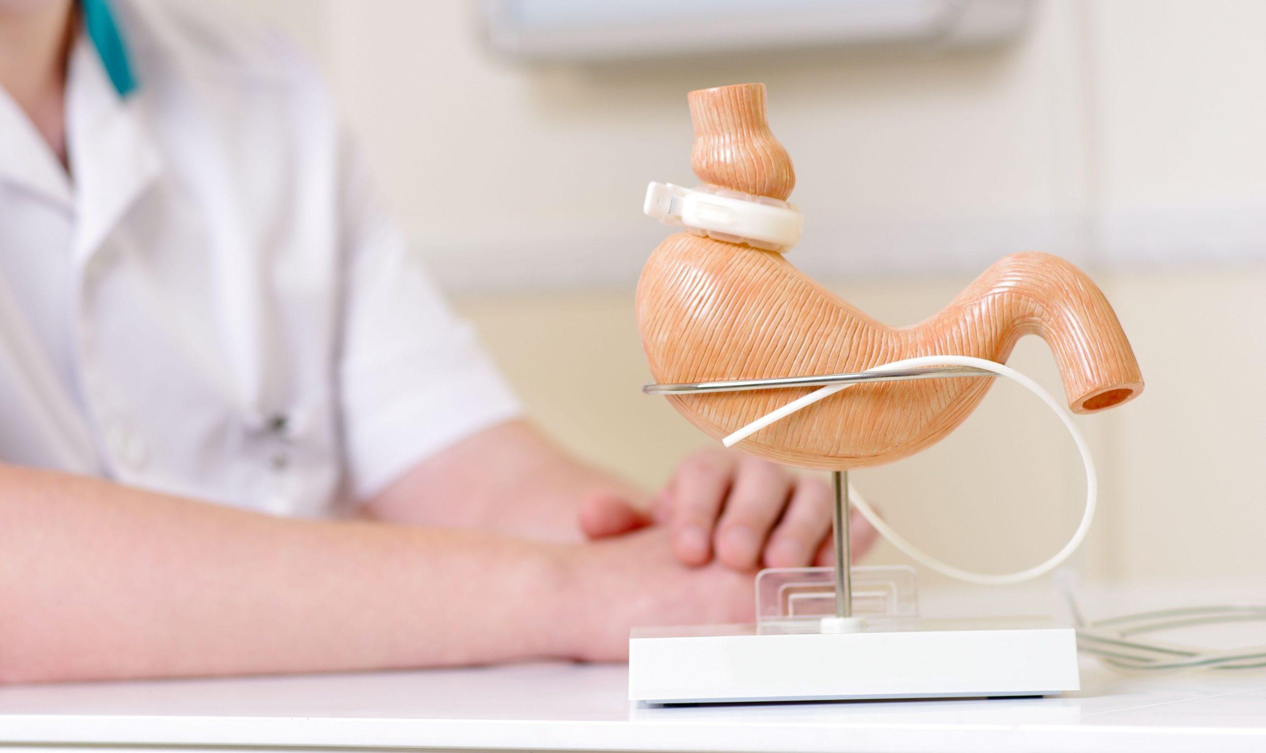 ¿Conoces la cirugía bariátrica? Te contamos los 3 mitos más frecuentes